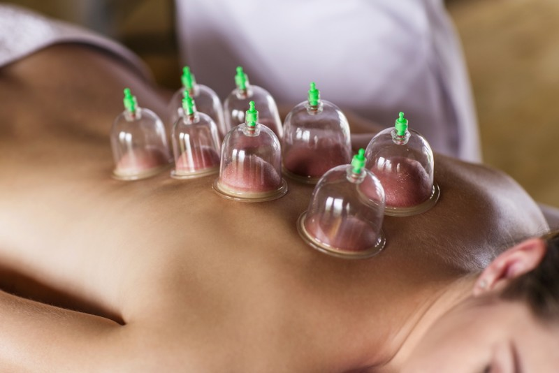 cupping-therapy-nyack